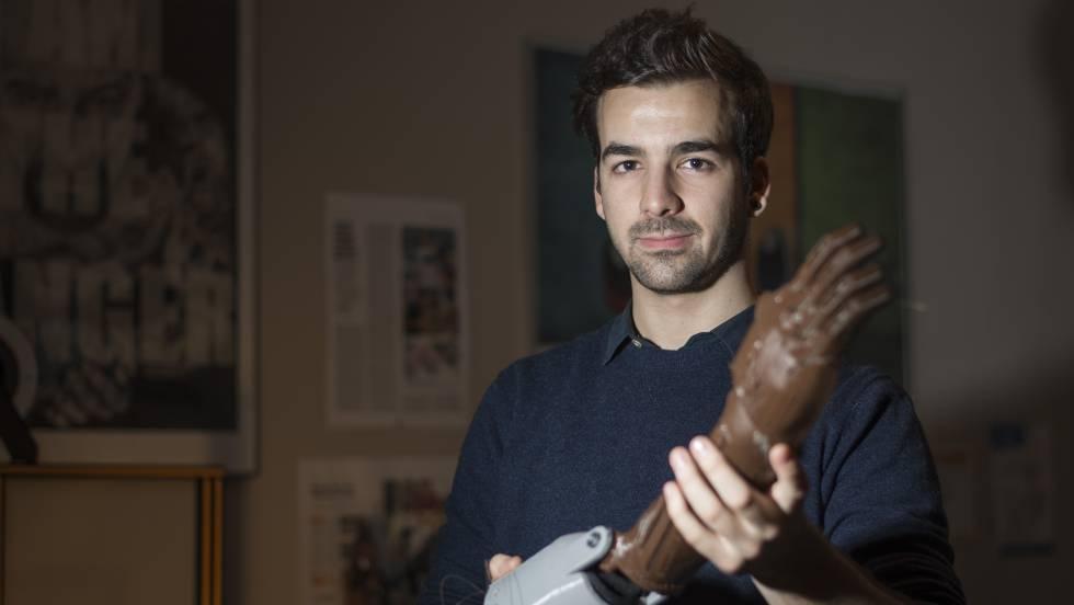 Guillermo Martínez, con una prótesis impresa en 3D. INMA FLORES